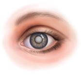Хрусталик и катаракта глаза