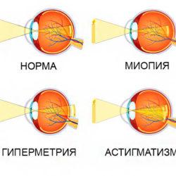 Рефракция глаза и ее аномалии